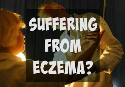 Treatment of Eczema with Betaderm