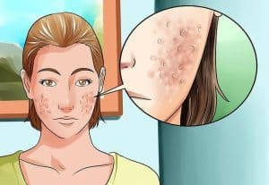 Derma Rolling Treatment for Acne Scars