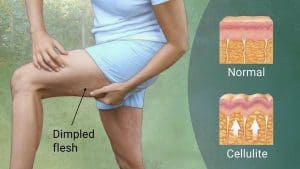 Derma Rolling for Cellulite