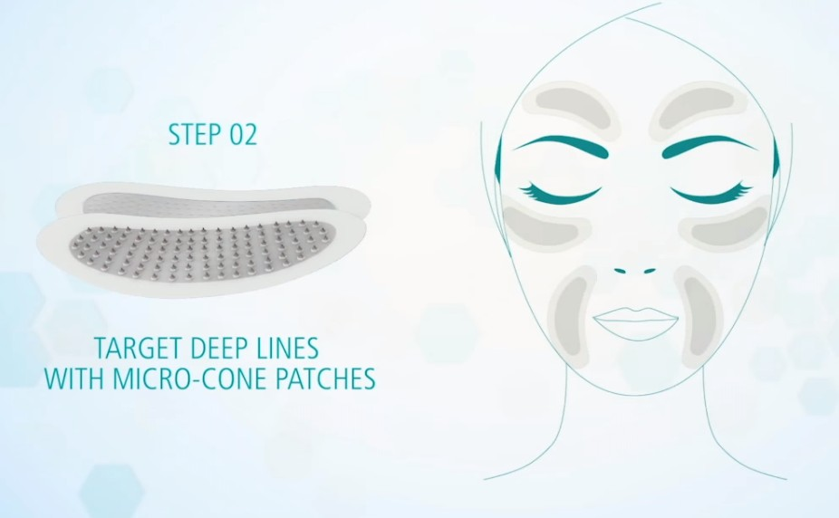 2 Step Exuviance HA100 Micro-Filler Patches Pro-Intensive Treatment for Deep Lines